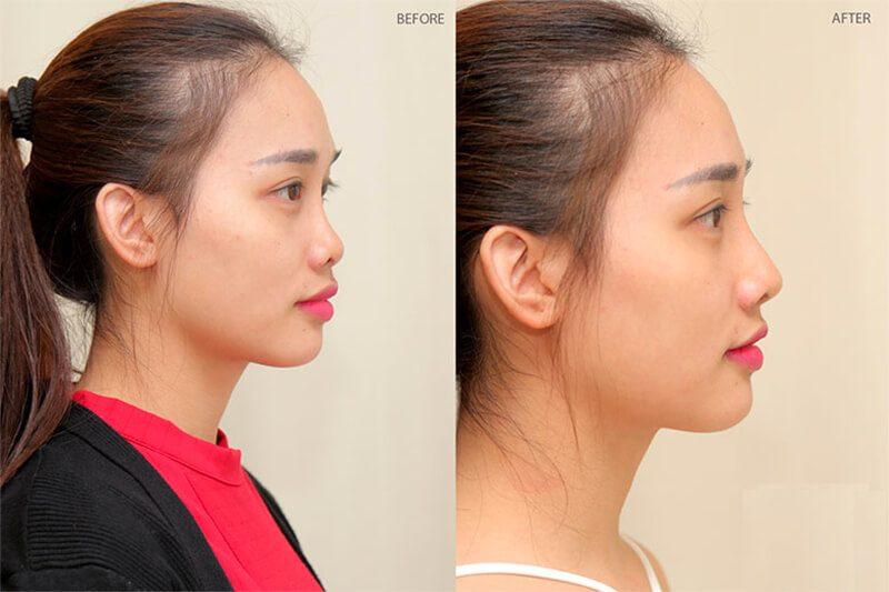 Hình ảnh trước và sau khi nâng mũi đẹp