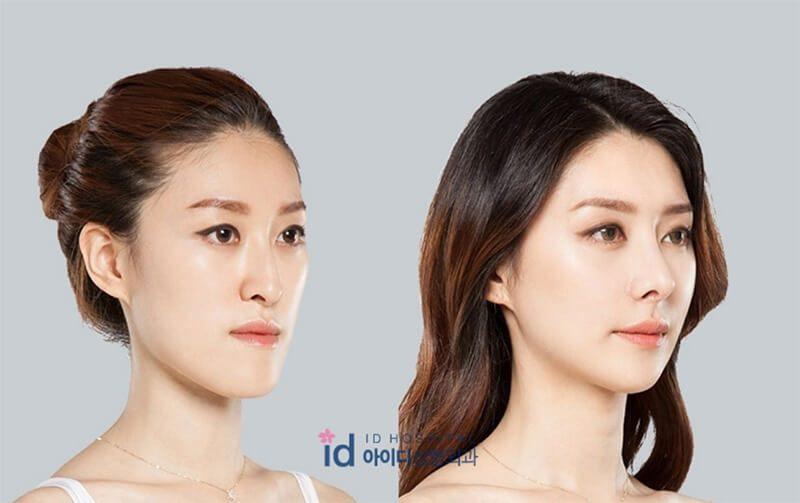 Thế nào là nâng mũi S line 3D?