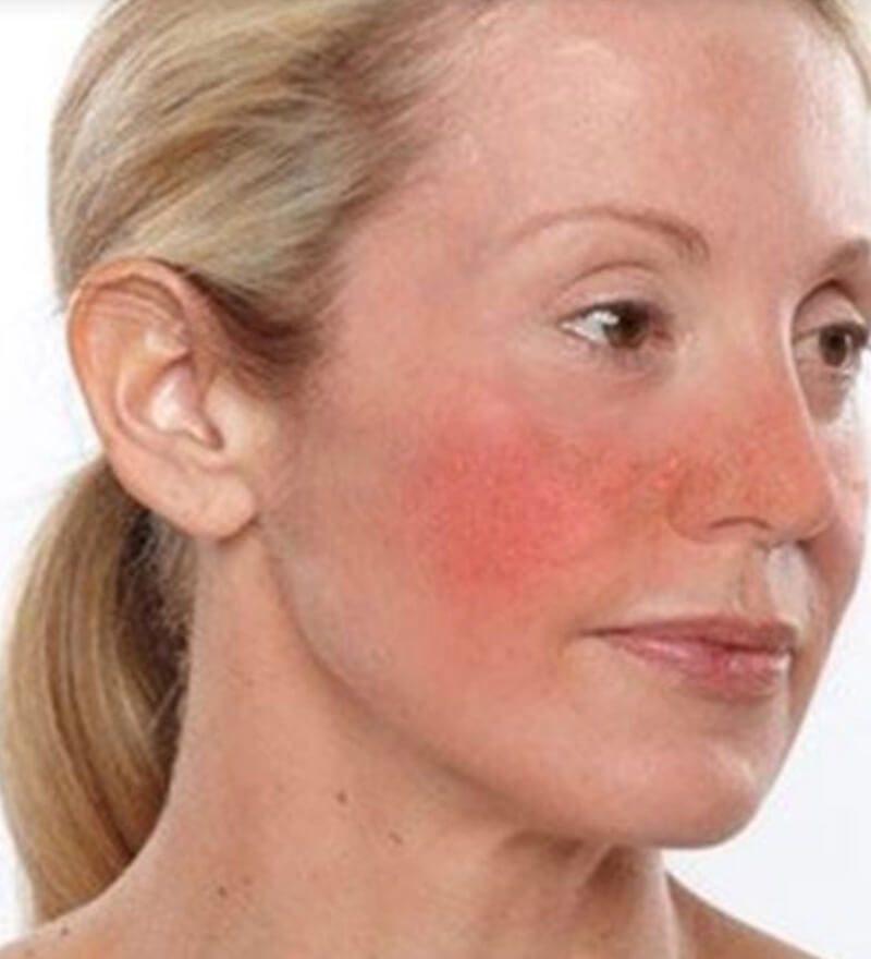 Mặt nạ vàng 24k có thể trị da sưng tấy