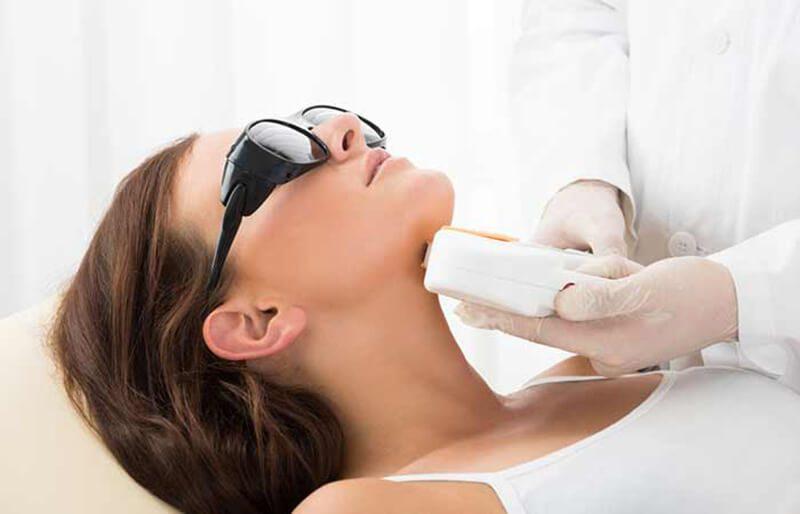 Tổng quan chi tiết về các loại phương pháp điều trị bằng laser được sử dụng để loại bỏ sẹo mụn.